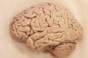 real-human-brain-660x438[1]