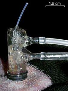 mechanical leech